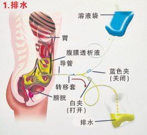 腹膜透析洗肾疗法