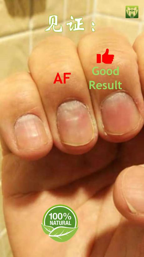 服用后指甲有很好的改善