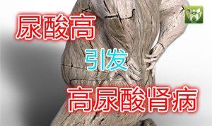 尿酸高引发高尿酸肾病